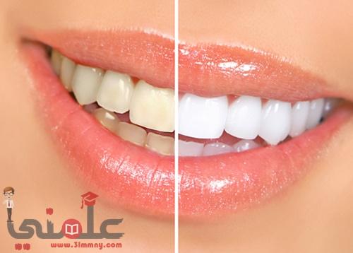 Photo of الطريقة الطبيعية والبسيطة لتبييض الأسنان من غير اللذهاب الى الدكتور