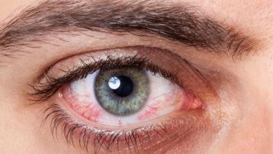 صورة ارتفاع ضغط العين وطرق علاجه