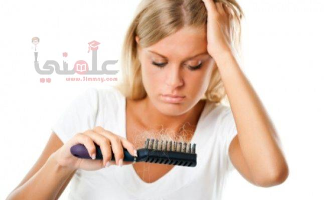 Photo of إليكى 4 وصفات للتخلص من قشرة الشعر وتقصفه وتساقطه